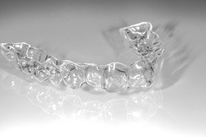 160901_KFO_Crystal-Clear-Aligner