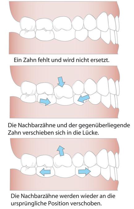 prae_zaehne_g